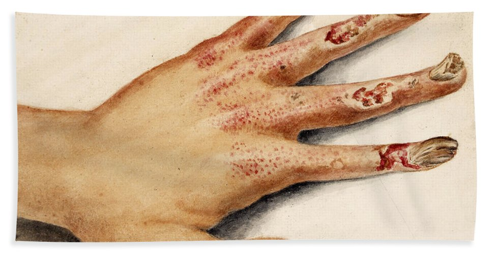Historic Hand Towel featuring the photograph Hand With Roentgen Ray X-ray by Wellcome Images