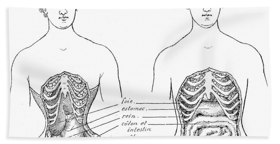 Historic Bath Sheet featuring the photograph Medical Crimes Of The Corset, 1908 by Wellcome Images