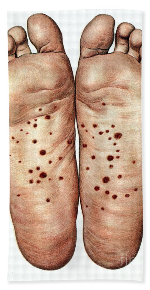 Historic Hand Towel featuring the photograph Psoriasis Of Feet, Illustration by Wellcome Images