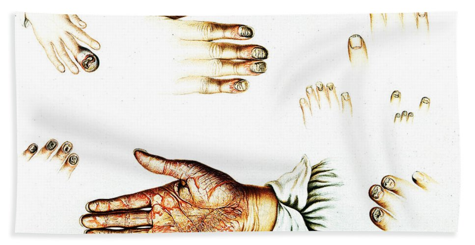 Historic Hand Towel featuring the photograph Psoriasis, Syphilis, Onychomycosis by Wellcome Images