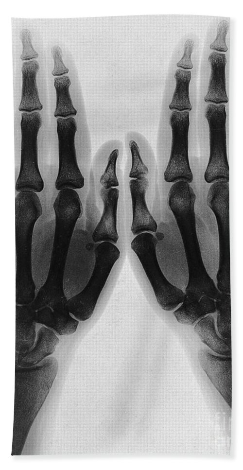 Historic Bath Sheet featuring the photograph X-ray Of Two Normal Hands, 1896 by Wellcome Images
