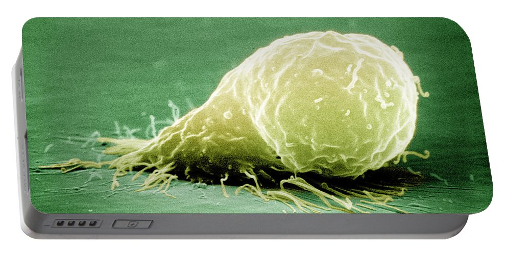 Alveolus Portable Battery Charger featuring the photograph Human Macrophage by David M. Phillips