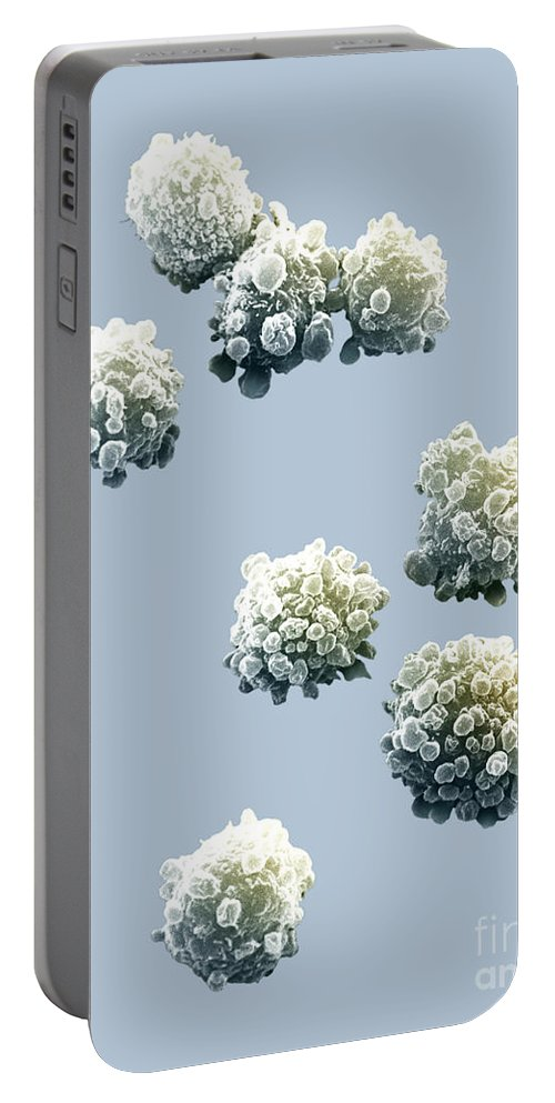 Lymphocytes Portable Battery Charger featuring the photograph Lymphocytes Undergoing Apoptosis by David M. Phillips