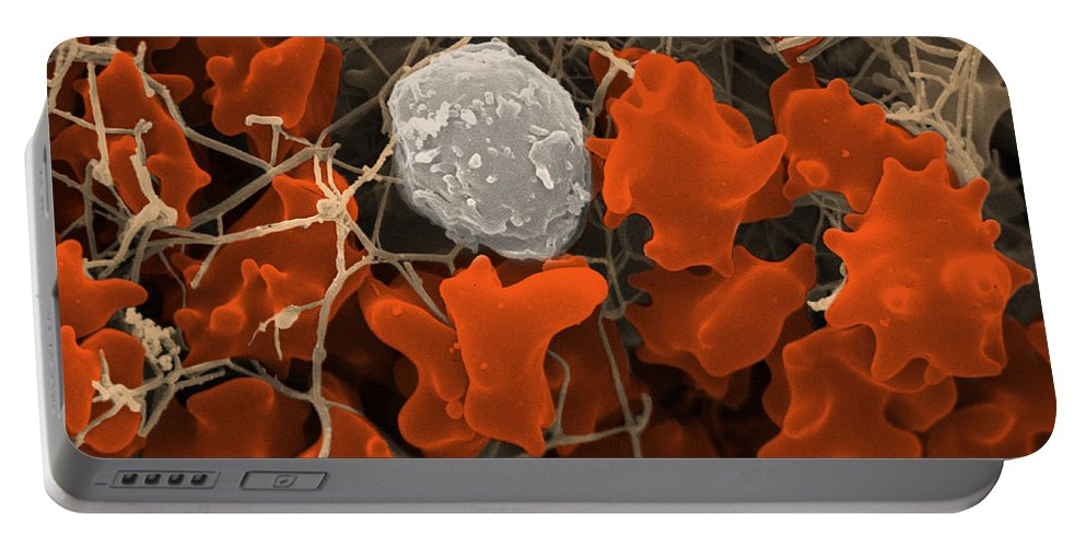Blood Portable Battery Charger featuring the photograph Blood Clot by David M. Phillips