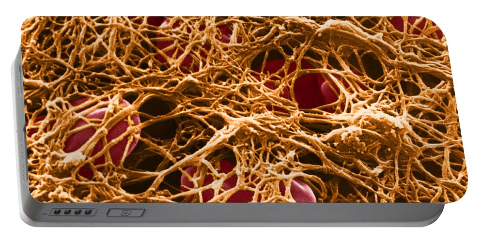 Science Portable Battery Charger featuring the photograph Blood Clot Sem, 3 Of 3 by David M. Phillips