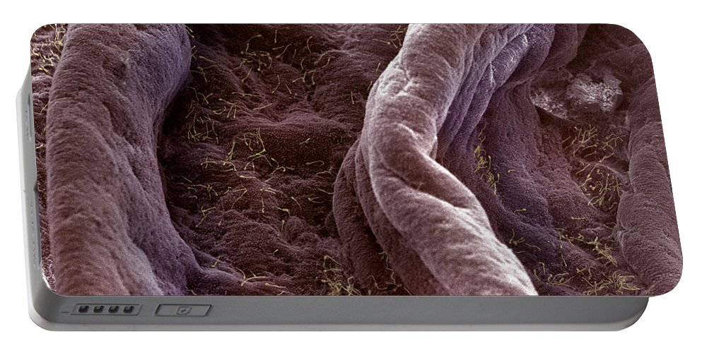 Scanning Electron Microscopy Portable Battery Charger featuring the photograph Surface Of Human Vagina by David M. Phillips