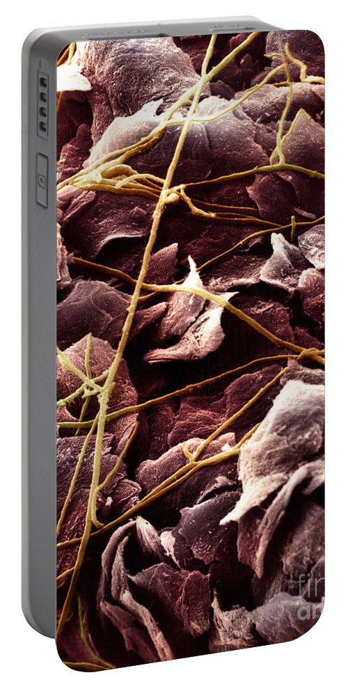Sem Portable Battery Charger featuring the photograph Candida And Epithelial Cells by David M. Phillips