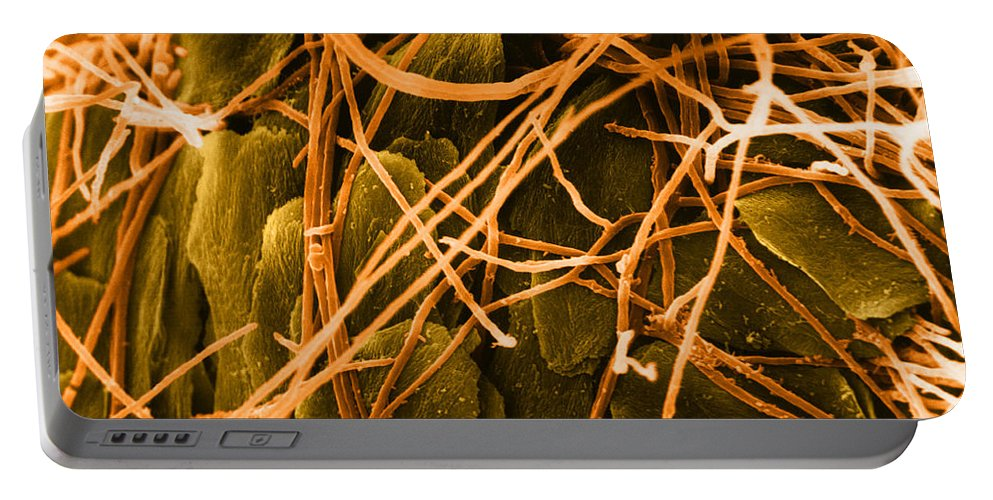 Microscopy Portable Battery Charger featuring the photograph Trichophyton Fungus, Sem by David M. Phillips