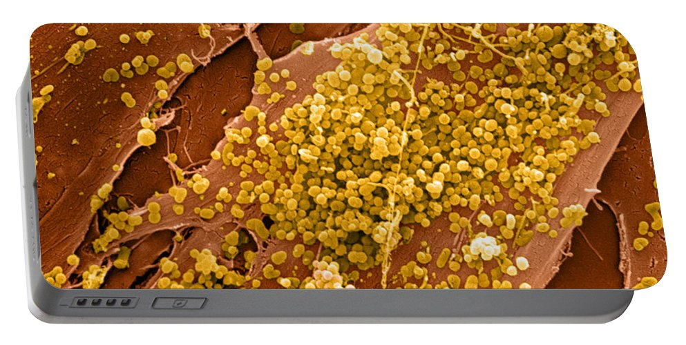 Cell Portable Battery Charger featuring the photograph Human Skin Cell Sem by David M. Phillips