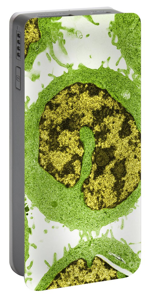 Medical Imaging Portable Battery Charger featuring the photograph Cancer Cells Tem by David M. Phillips