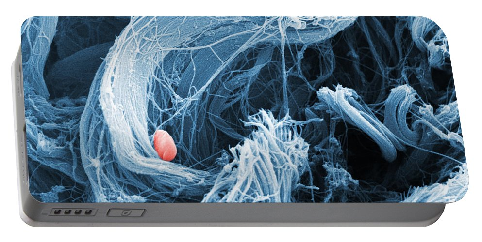 Collagen Portable Battery Charger featuring the photograph Collagen Sem by David M. Phillips
