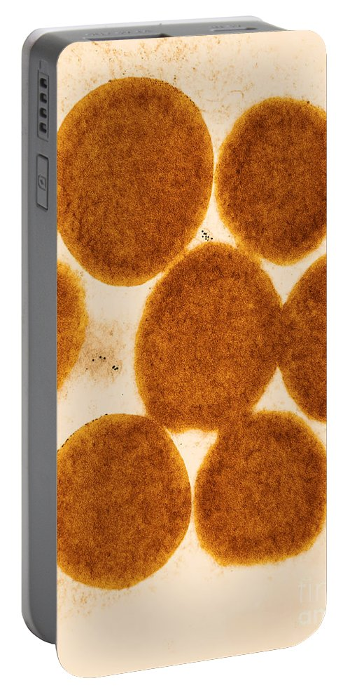 Medical Portable Battery Charger featuring the photograph Lipid Droplets Tem by David M. Phillips