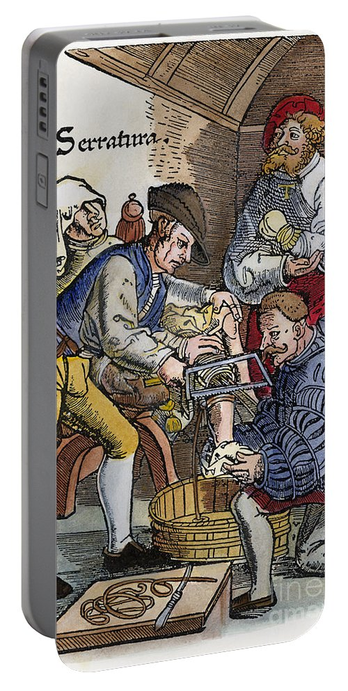 1540 Portable Battery Charger featuring the photograph Amputation, 1540 by Granger