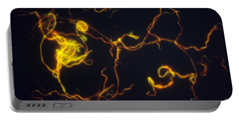 Science Portable Battery Charger featuring the photograph Borrelia Burgdorferi Lm by David M. Phillips