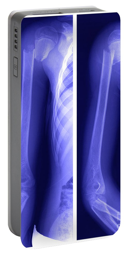 Humerus Portable Battery Charger featuring the photograph Broken Humerus by Ted Kinsman