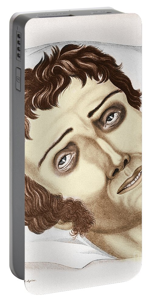 History Portable Battery Charger featuring the photograph Cholera Victim, 1831 by Science Source