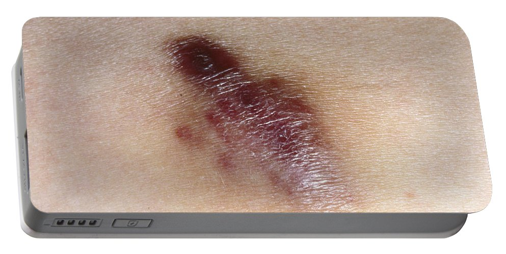 Acquired Immune Deficiency Portable Battery Charger featuring the photograph Kaposis Sarcoma by Science Source