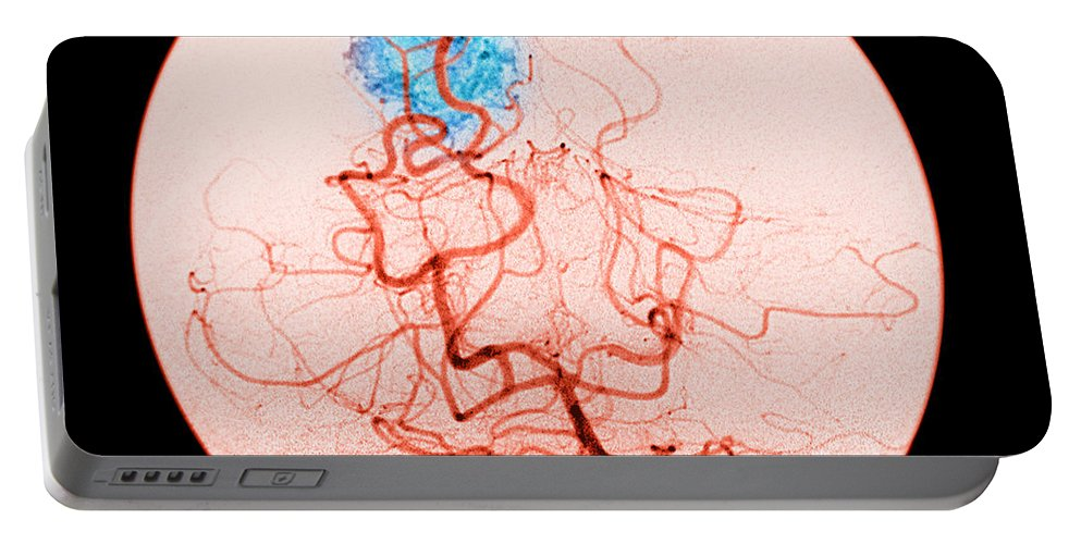 Abnormal Cerebral Angiogram Portable Battery Charger featuring the photograph Occipital Lobe Avm by Medical Body Scans