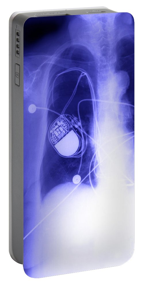X-ray Portable Battery Charger featuring the photograph Pacemaker by Ted Kinsman