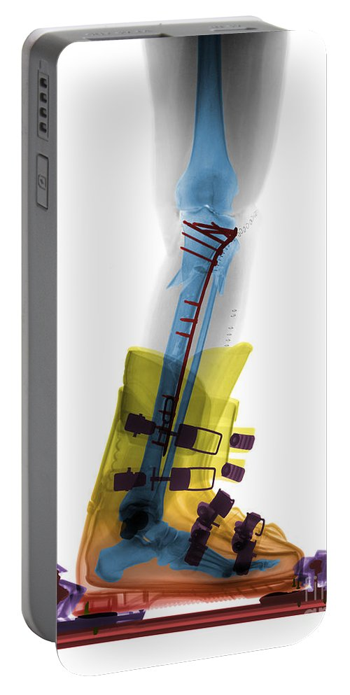 X-ray Portable Battery Charger featuring the photograph X-ray Of Broken Bones In Ski Boot by Ted Kinsman