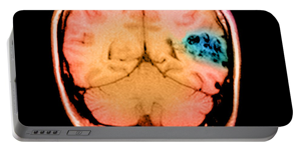Abnormal Cerebral Blood Vessels Portable Battery Charger featuring the photograph Mri Of Brain Avm by Medical Body Scans