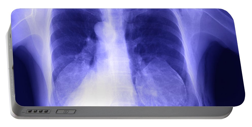 X-ray Portable Battery Charger featuring the photograph Chest X-ray Of Female by Ted Kinsman