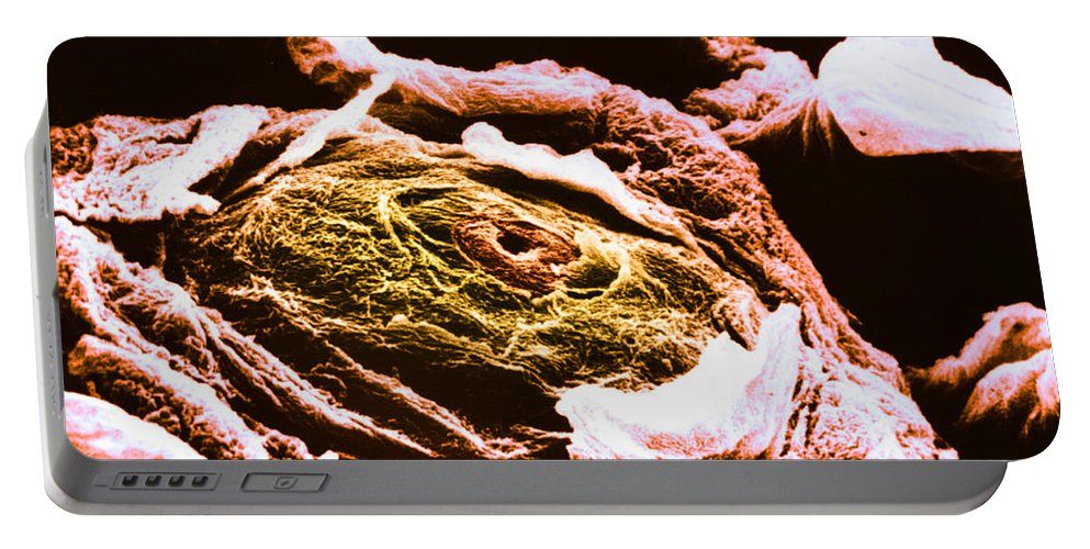 Tongue Portable Battery Charger featuring the photograph Human Tongue Papilla, Sem by Omikron