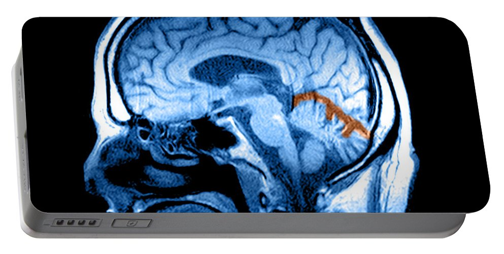 Abnormal Mri Brain Portable Battery Charger featuring the photograph Mri Of Alcoholism Related Vermian by Medical Body Scans
