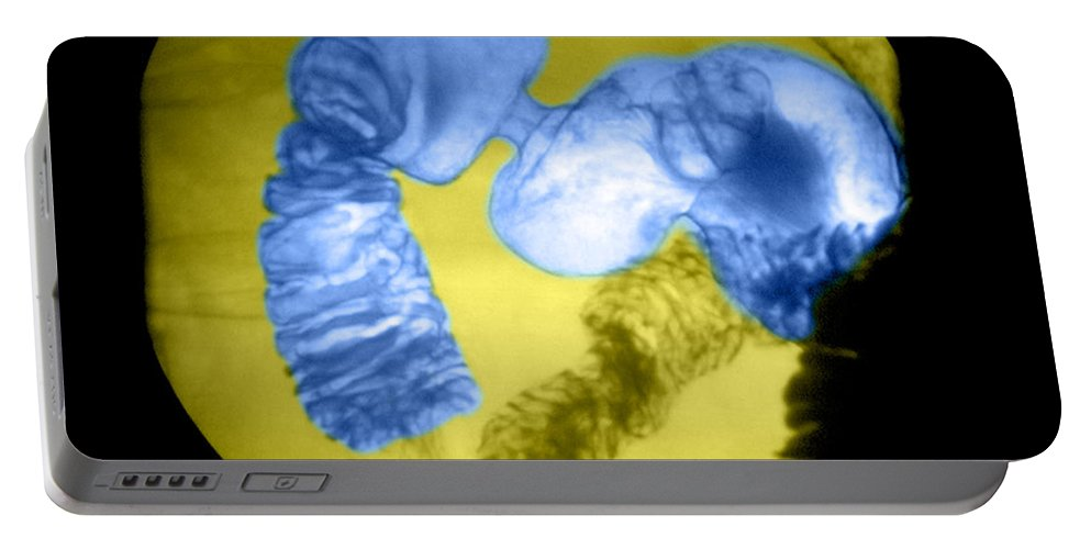 Anatomy Portable Battery Charger featuring the photograph Distal Stomach And Duodenum by Medical Body Scans