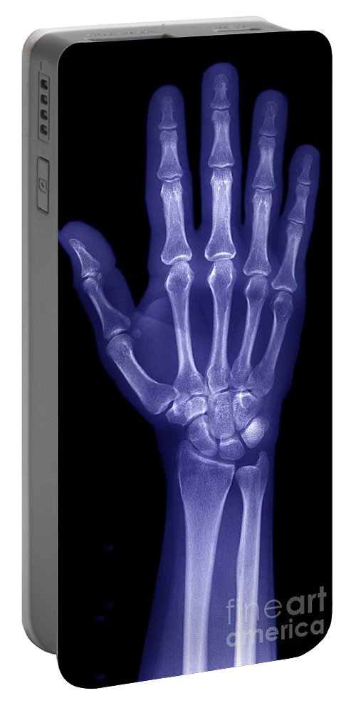 Hand Portable Battery Charger featuring the photograph Normal Hand by Ted Kinsman