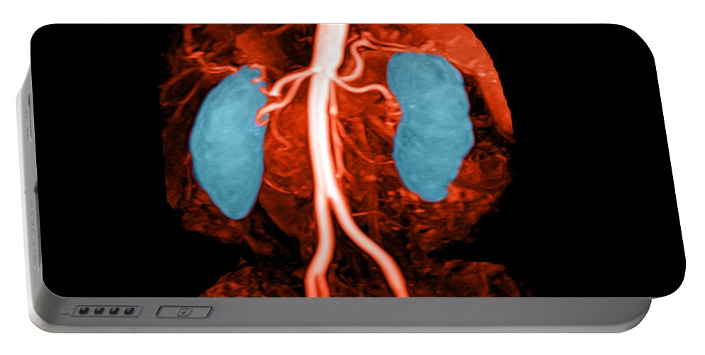 Abdomin Portable Battery Charger featuring the photograph Abdominal Aorta, Kidneys And Iliac by Medical Body Scans