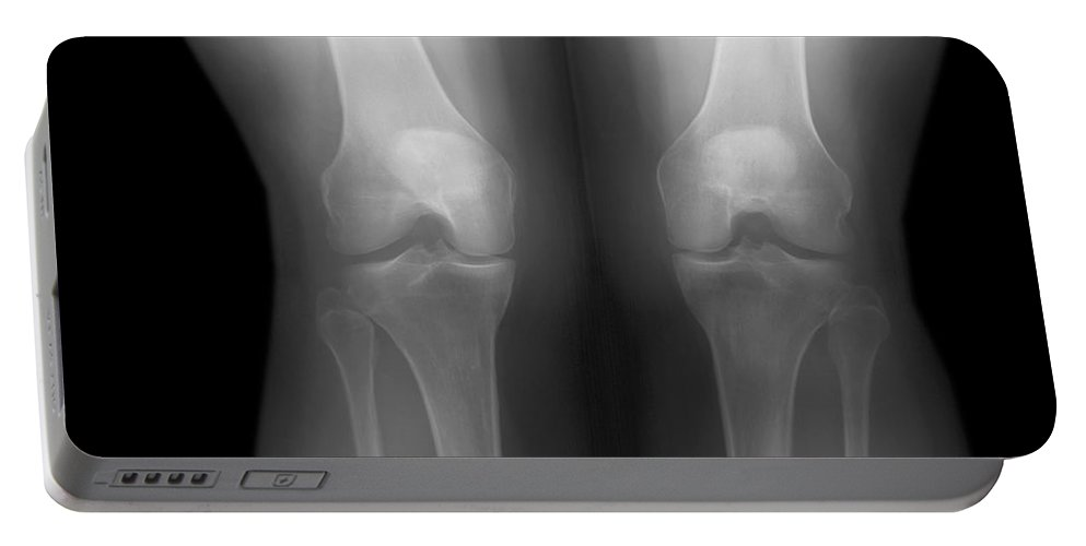 Knee Portable Battery Charger featuring the photograph Knees by Ted Kinsman