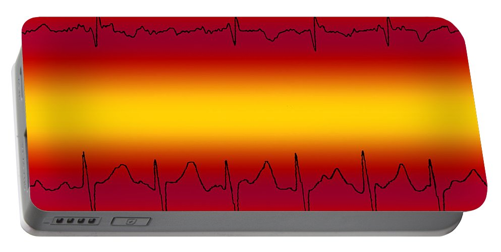 Atrial Fibrillation Portable Battery Charger featuring the photograph Atrial Flutter & Atrial Fibrillation by Science Source