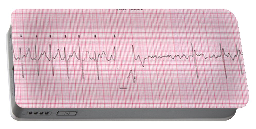 Atrial Fibrillation Portable Battery Charger featuring the photograph Cardioversion, 1 Of 2 by Science Source