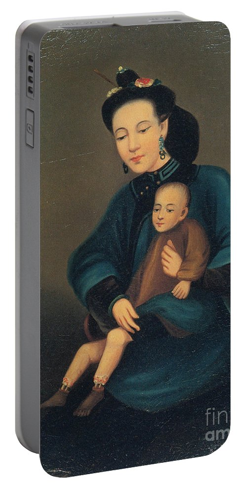 History Portable Battery Charger featuring the photograph Child With Gangrene by Science Source
