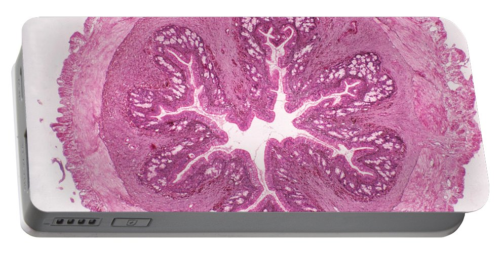 Histology Portable Battery Charger featuring the photograph Frog Stomach Lm by M. I. Walker