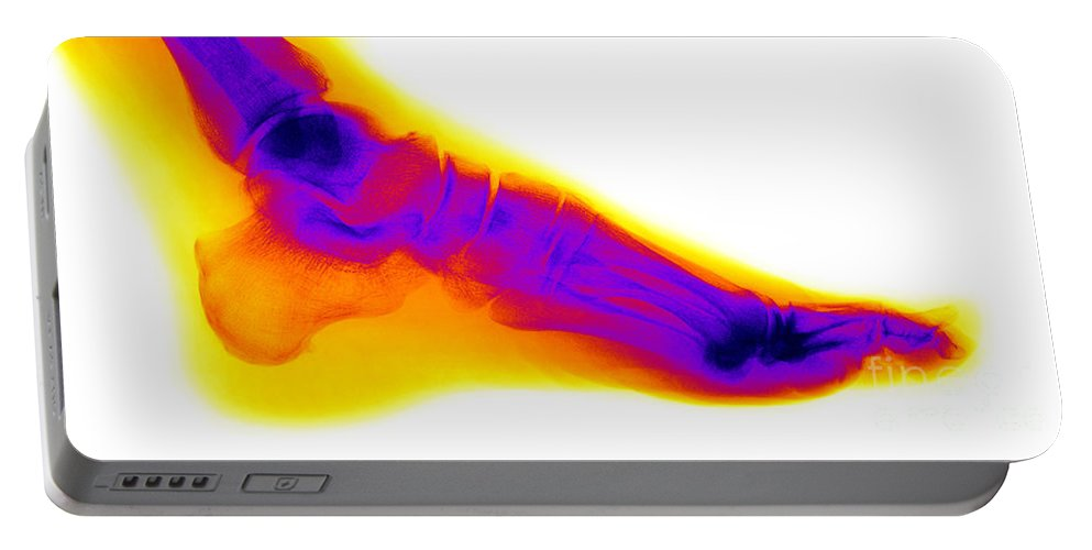 Human Foot Portable Battery Charger featuring the photograph Normal Human Foot by Ted Kinsman