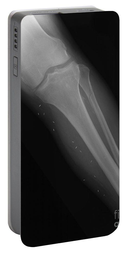 Xray Portable Battery Charger featuring the photograph X-ray Of Broken Leg by Ted Kinsman