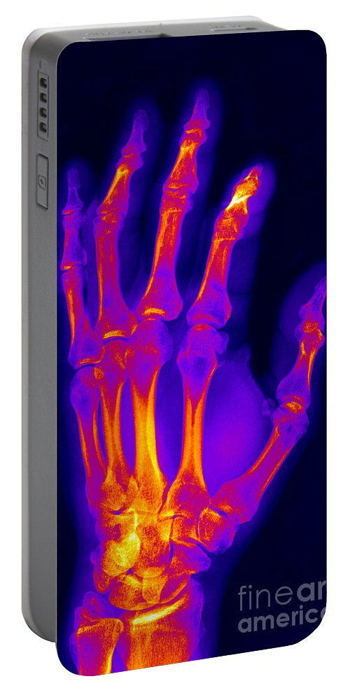 X-ray Portable Battery Charger featuring the photograph Finger Fracture by Ted Kinsman