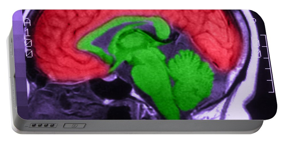 Brain Portable Battery Charger featuring the photograph Mri Of Normal Brain by Science Source