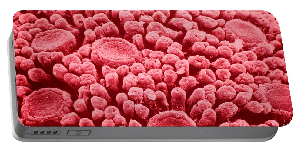 Tongue Portable Battery Charger featuring the photograph Taste Buds, Sem by Omikron