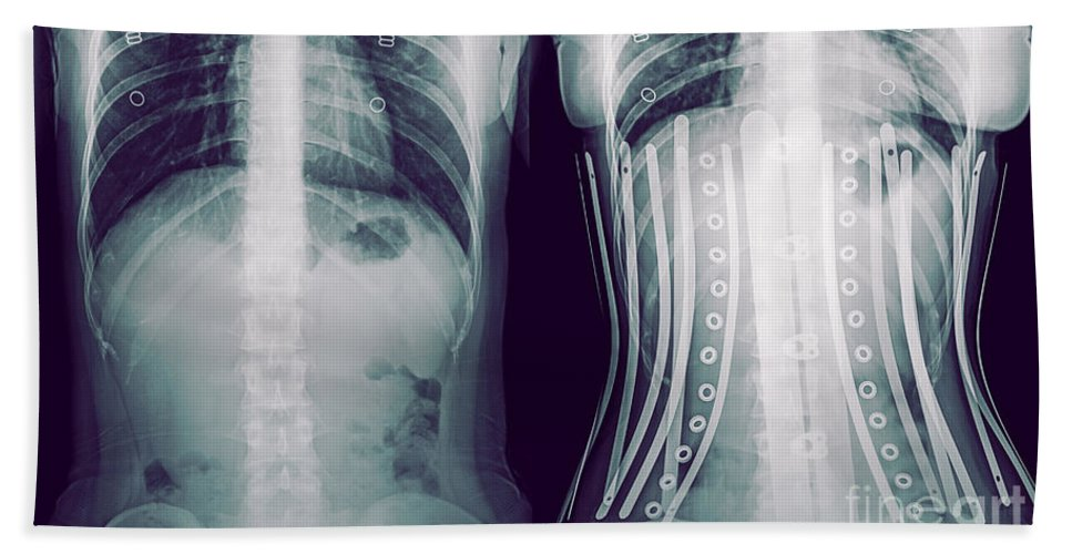 6ac598de11 Compare Beach Sheet featuring the photograph Woman Wearing A Corset X-ray  by Guy Viner