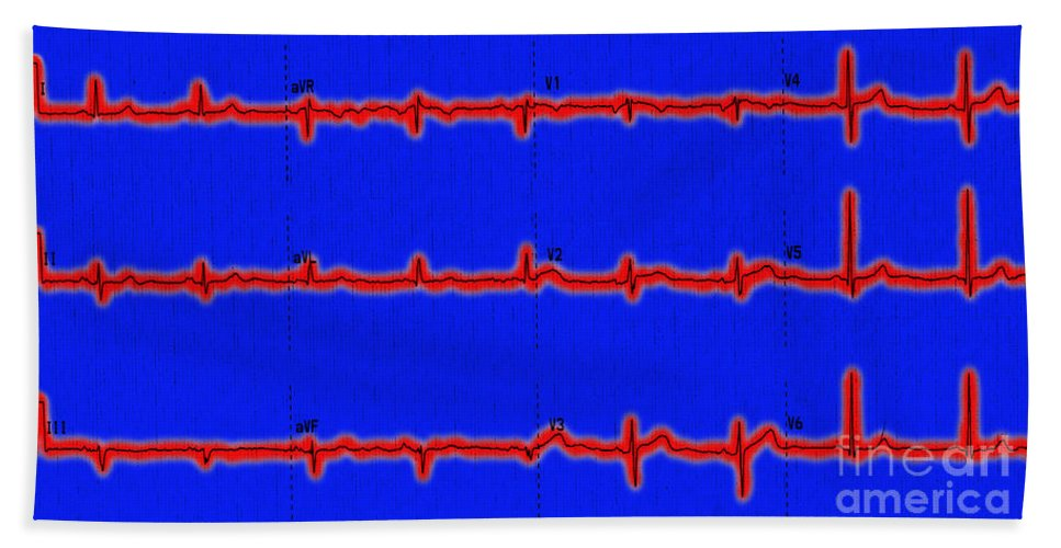 Ecg Beach Towel featuring the photograph Normal Ecg by Science Source