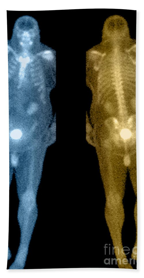 Obese Beach Towel featuring the photograph Bone Scan by Medical Body Scans