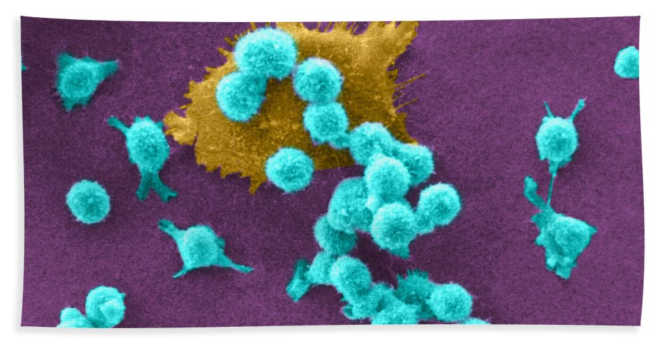 Scanning Electron Micrograph Beach Towel featuring the photograph Cancer Cell Death, Sem 2 Of 6 by Science Source