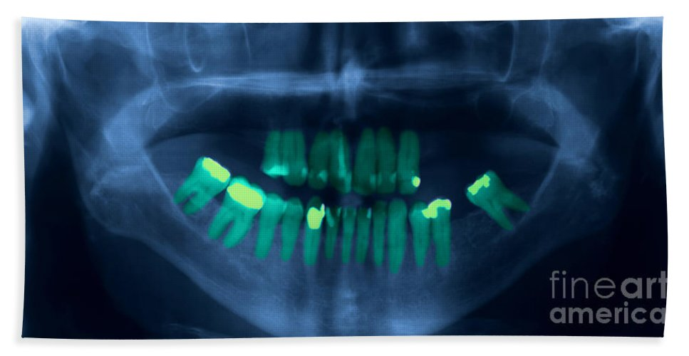 X-ray Beach Towel featuring the photograph Dental X-ray by Ted Kinsman