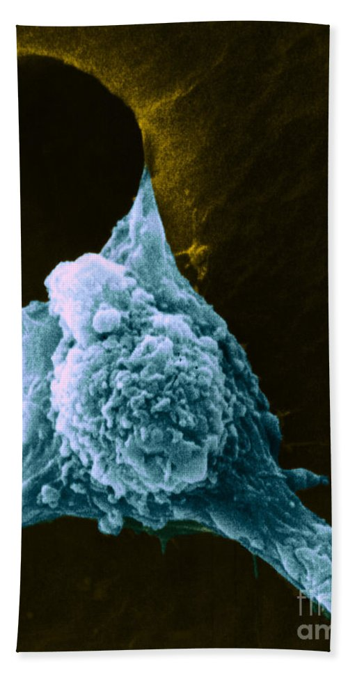 Sem Beach Towel featuring the photograph Metastasis by Science Source