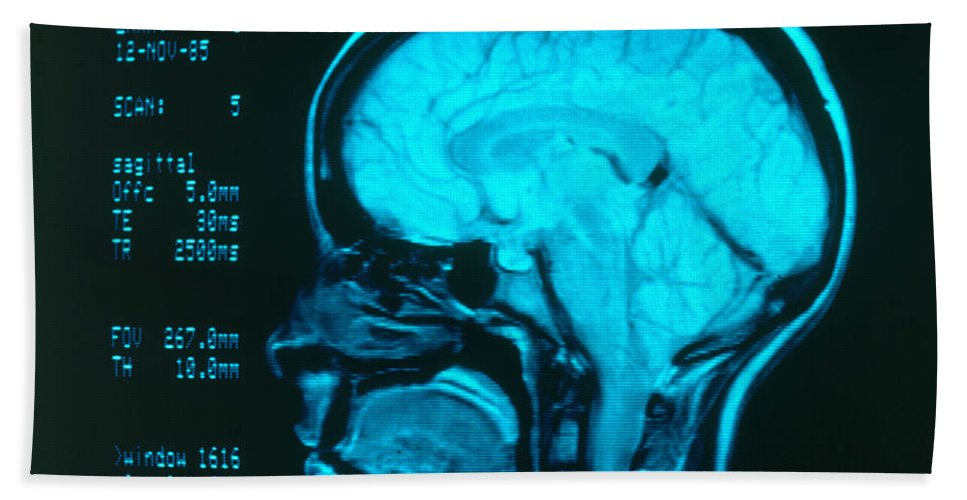 Angiography Beach Towel featuring the photograph Radiology Angiography Of Brain by Science Source