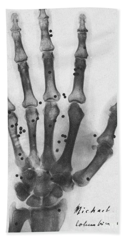 X-ray Beach Towel featuring the photograph X-ray Of A Hand With Buckshot by Photo Researchers