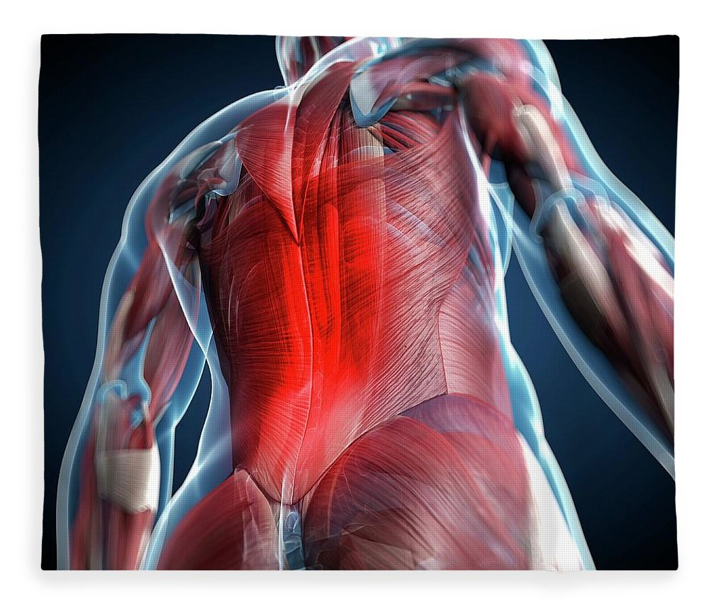 Physiology Fleece Blanket featuring the digital art Back Pain, Conceptual Artwork by Science Photo Library - Sciepro